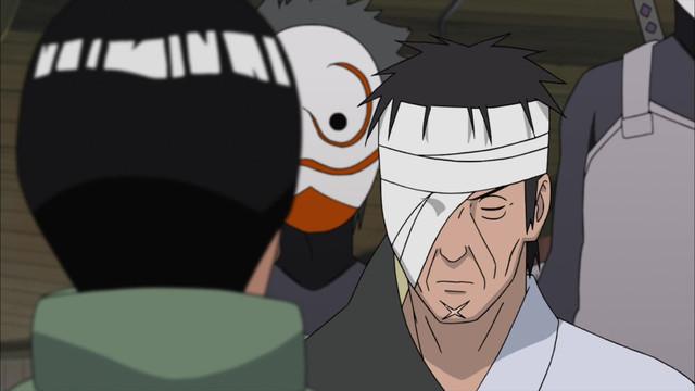 357. Kakashi: Shadow of the ANBU Black Ops – An Uchiha ANBU