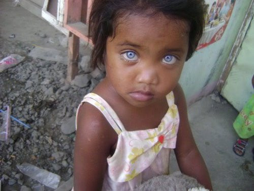 filipino girl from the island of mindoro has rare purpelishblue eyes