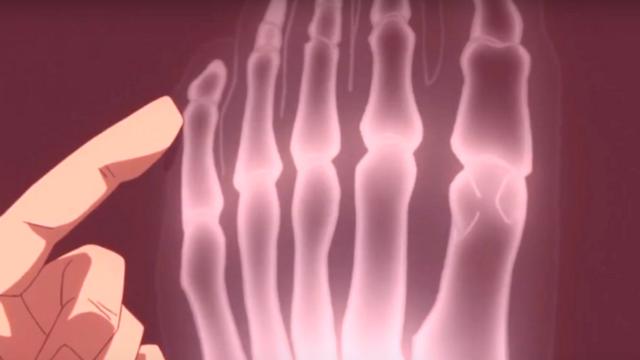Deku's X-Ray in My Hero Academia